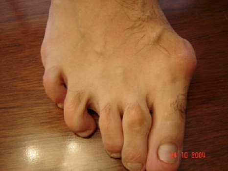 how to get rid of calluses on big toe