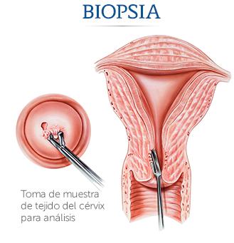 Pruebas para diagnosticar y determinar la etapa del cáncer de próstata