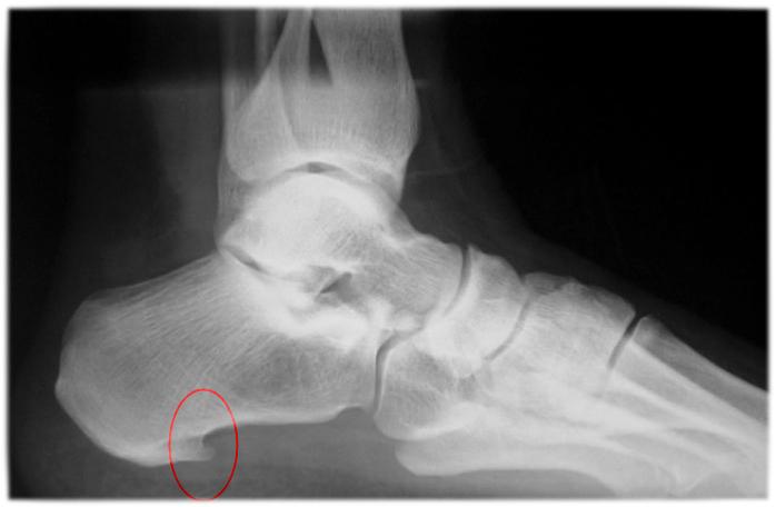Dolor de la parte inferior del pie - Centro de