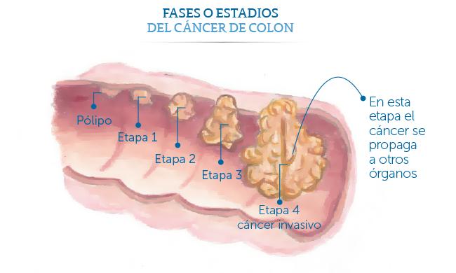 cancer de colon fase 3