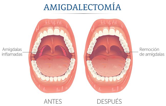 Médica Sur: Cirugía de amígdalas
